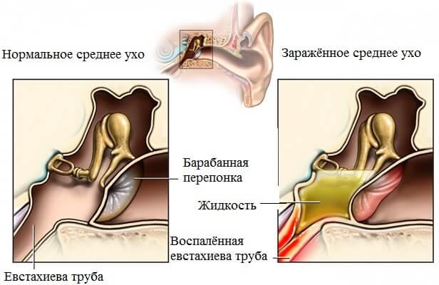 лечение тубоотита