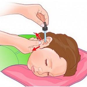 лечение отита перекисью водорода
