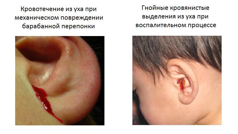 перфорация ушной перепонки
