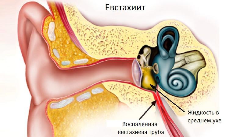 тубоотит симптомы и лечение
