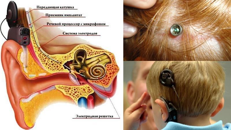 ушной аппарат