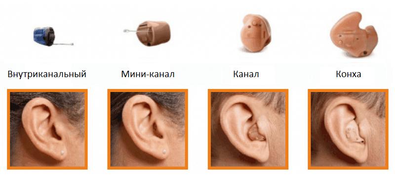 самый маленький слуховой аппарат