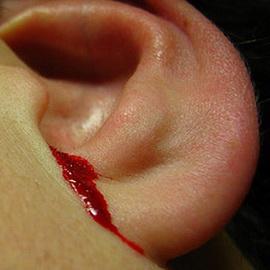 кровь из уха при отите