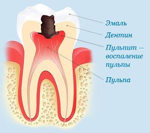 может ли больной зуб отдавать в ухо