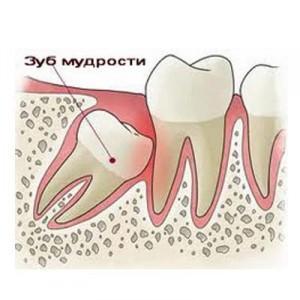 боль в зубе отдает в ухо
