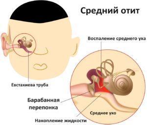 острый средний отит симптомы