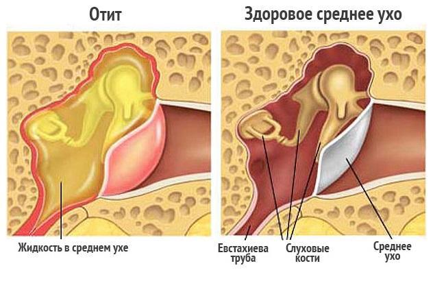 почему в ухе мокро-3