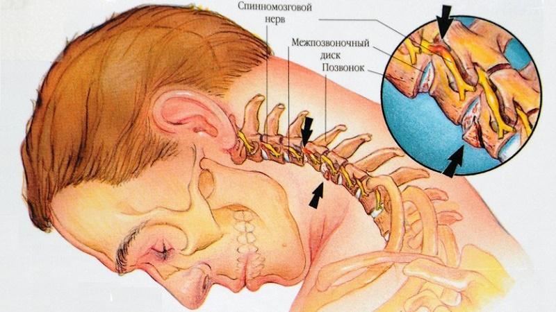 боль в ушах при остеохондрозе