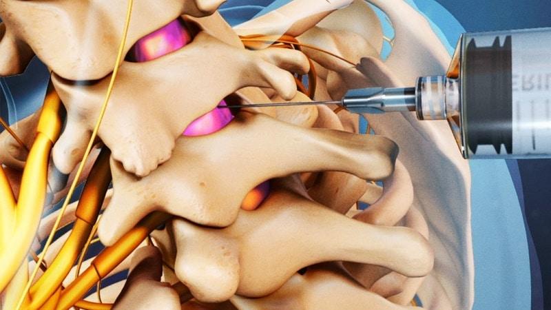 пульсация в ухе при остеохондрозе