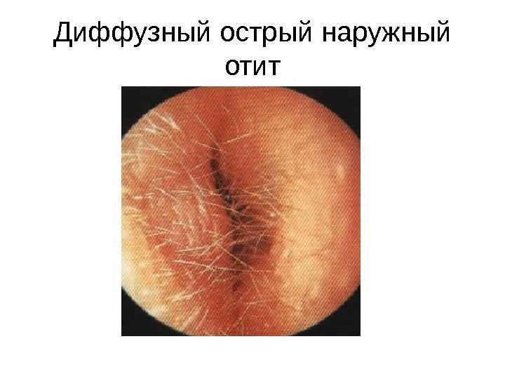 диффузный отит