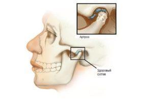 болит голова отдает в уши