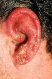 среднее ухо заболевание симптомы причины профилактика