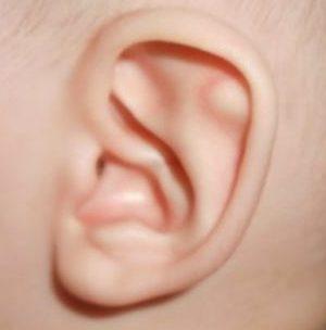 шишки в ушах