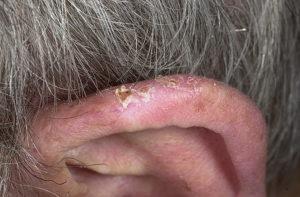 опухла ушная раковина