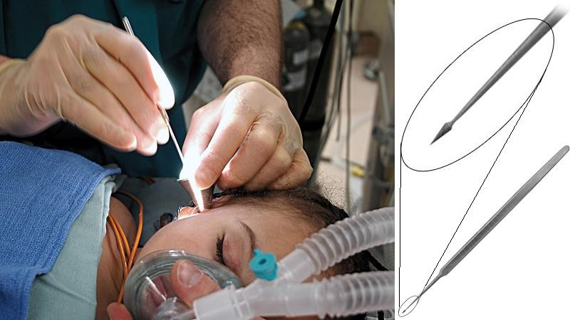 отит операция