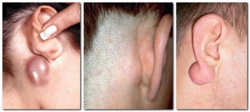 уплотнение за ухом