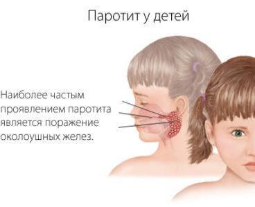 шишка на голове за ухом у ребенка