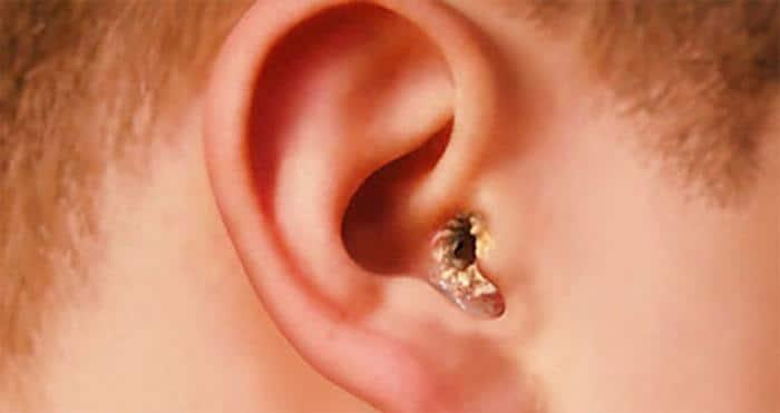 грибок в ушах симптомы лечение фото