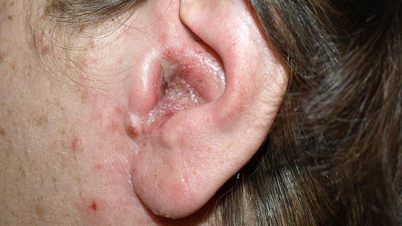 Какие заболевания уха бывают