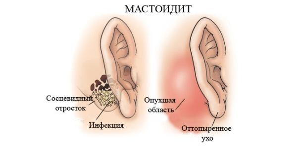 Почему болит за ухом?