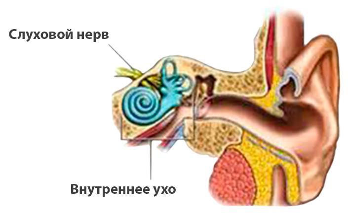 -лечение неврита слухового нерва