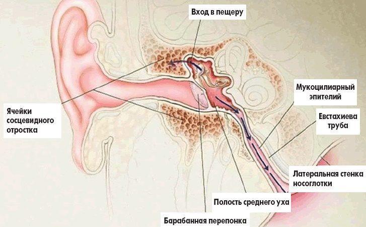 воспаление среднего уха называют