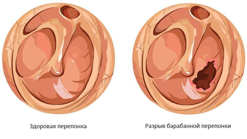 чем лечить воспаление среднего уха