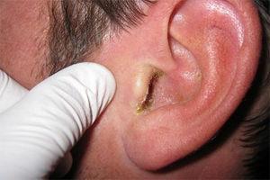 svamp i öronen