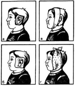 -техника постановки согревающего компресса на ухо