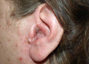 Почему болит при нажатии за ухом