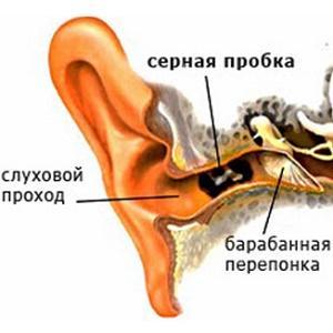 потеря слуха на одно ухо причина