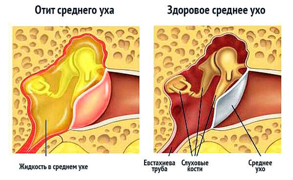 -при каких заболеваниях закладывает уши