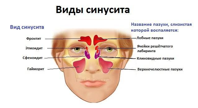 -болит ухо и голова с правой стороны