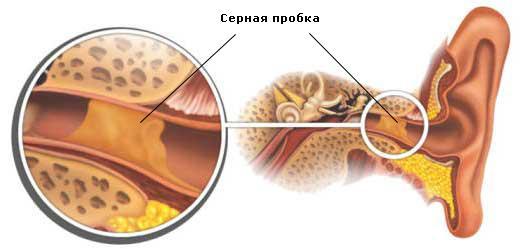 В ухе как будто вода: ощущение жидкости, что делать и причины
