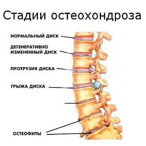 Лимфоузел на шее боль при повороте шеи - Вопрос онкологу - 03 Онлайн