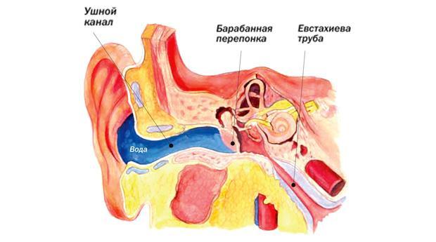 Что делать если в ухо попала вода?