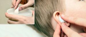 Как промывать ухо перекисью водорода?