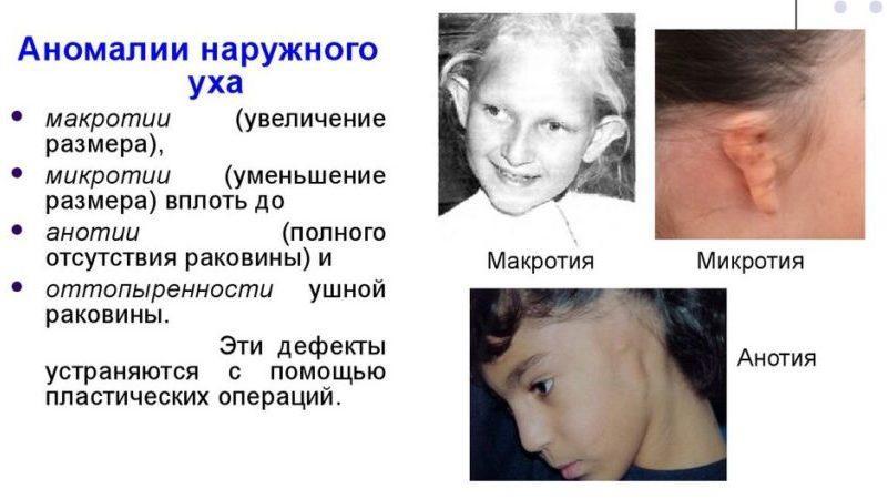 у грудничка разные уши