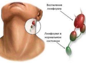 -за мочкой уха появилась шишка