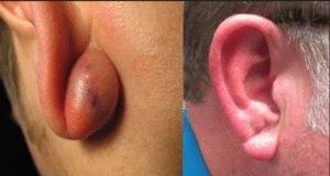 почему после прокола ушей образуются шишки