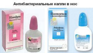 Отзывы о препарате Изофра при гайморите