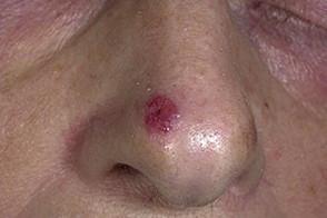 базалиома носа лечение