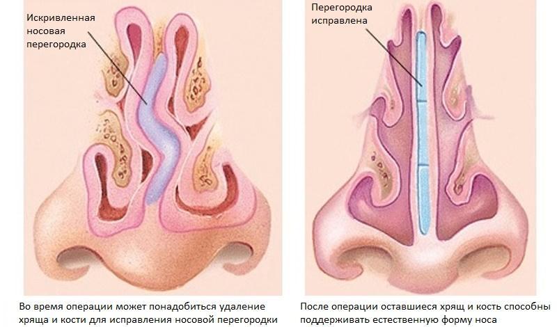 Поющие в месте нос с горбинкой