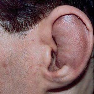 слуховой канал