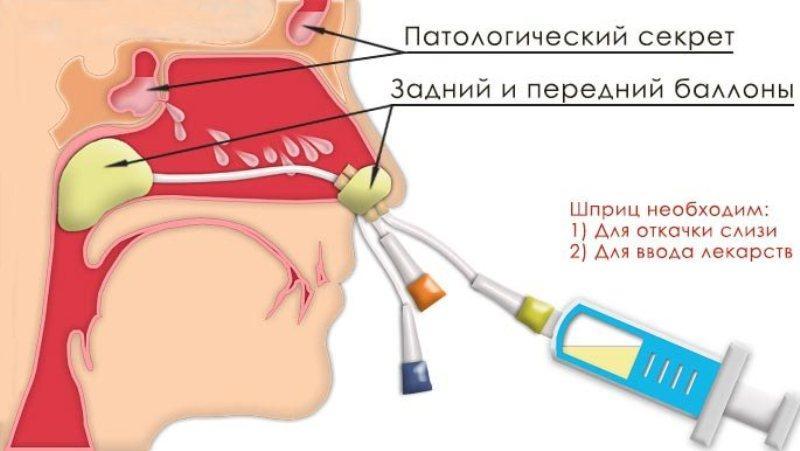 Хронический гайморит  причины симптомы осложнения Как