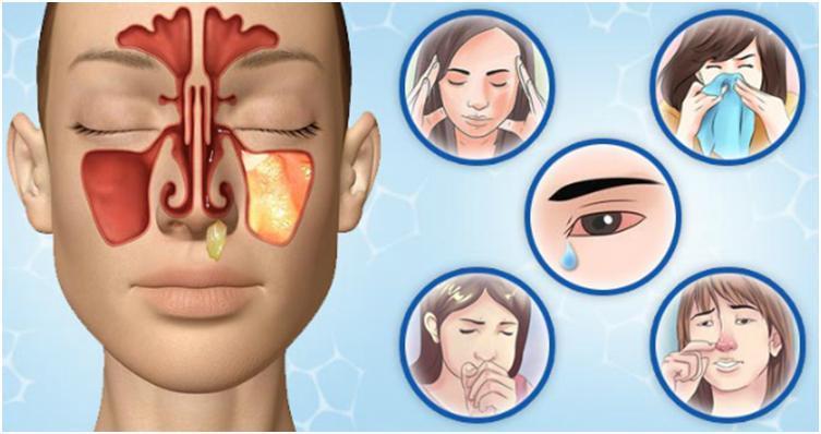 Какие симптомы при гайморите: первые признаки развития болезни