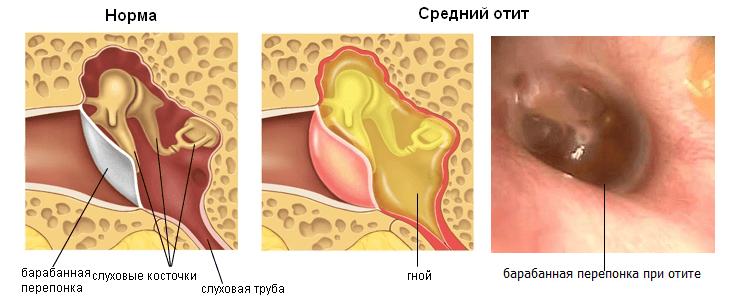 фото отит среднего уха