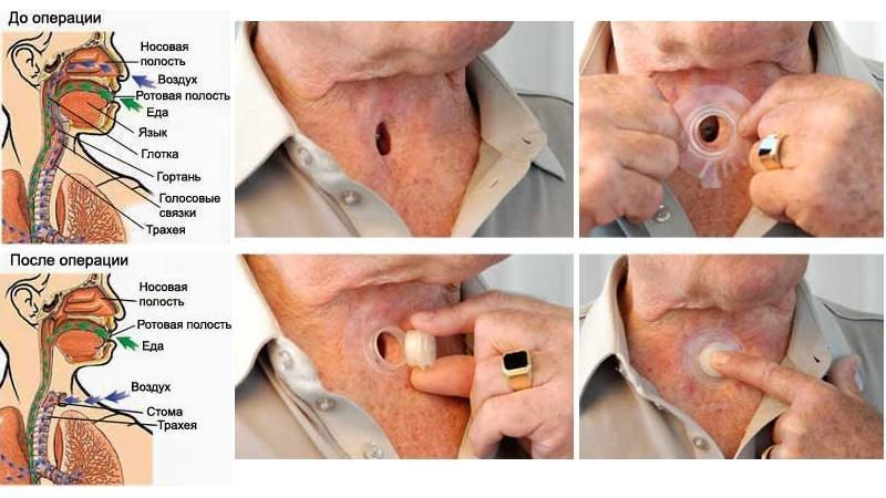 удаление гортани при злокачественной опухоли фото