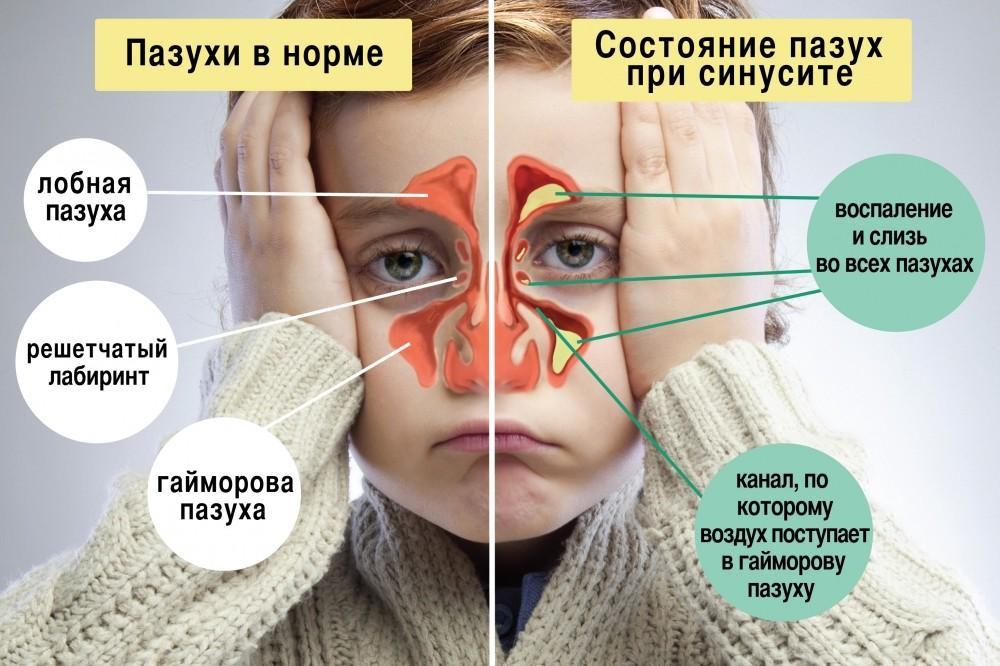 чем лечить синусит