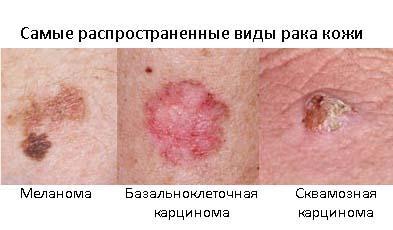 -плоскоклеточный рак кожи носа